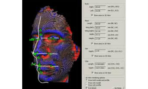 Now a technology to expose criminals after plastic surgery