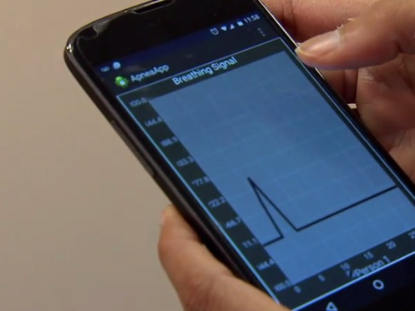 Indian-Origin duo develop App to Detect Sleep Apnoea at Home
