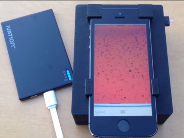 Smartphone Rapidly Detects Parasite levels in Blood