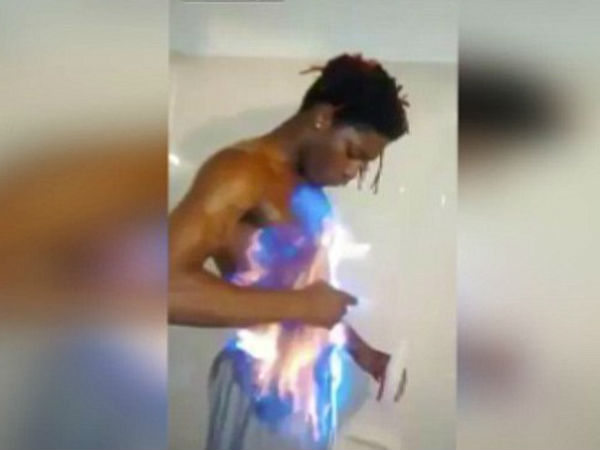 After Ice Bucket Challenge, Facebook 'fire challenge' faces criticism