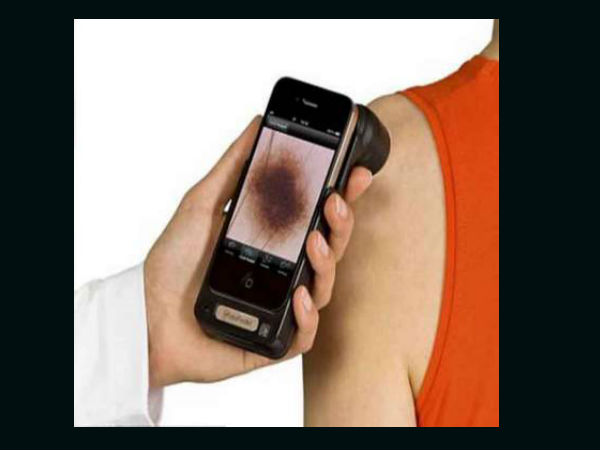 Simple Smartphone Device to catch skin cancer early