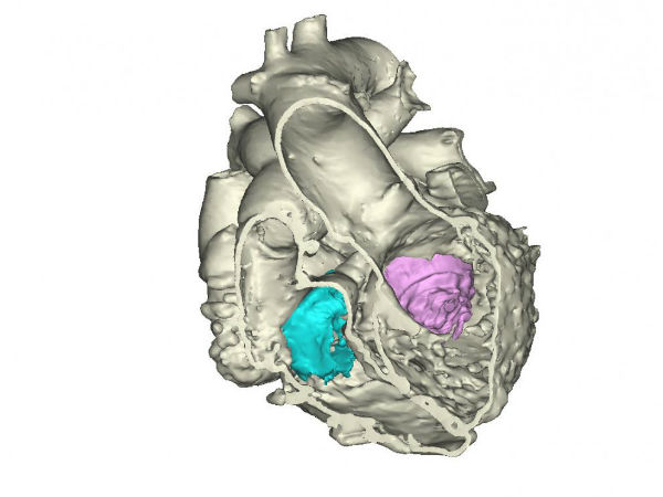 First 3D heart printed using multiple imaging techniques