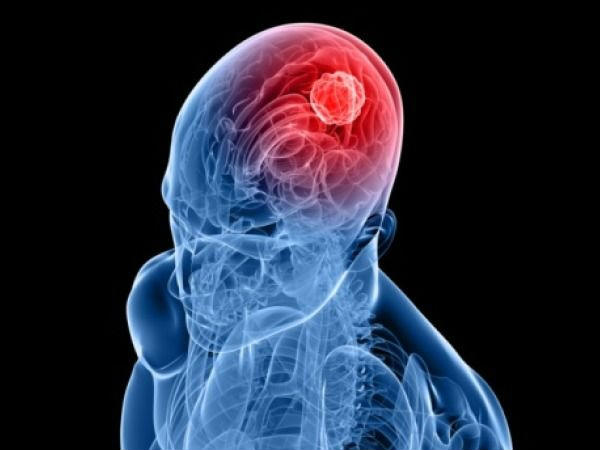 Nerve Damage due to Radiation