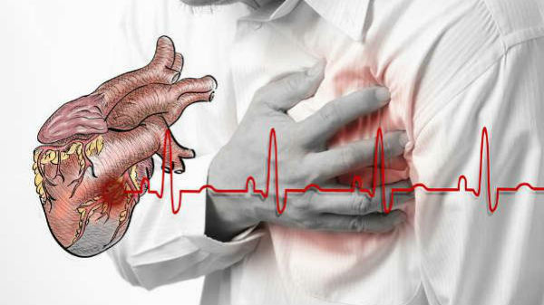 Microsoft to use AI for early detection of cardiac diseases