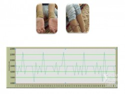 Wearable Sensor can Accurately Monitor Patient's Health