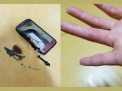 Alleged Samsung Galaxy S7 bursts into flames leaving blisters on user's hands