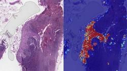 Google details its AI cancer detection study