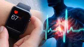 Apple Watch Saves 79-Year-Old Veterinarian By Detecting Serious Heart Issues